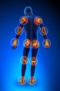 great ways to reduce the pain in aching joints, Skeleton
