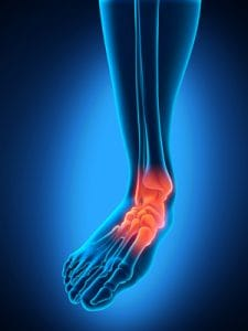 Arthritis in Feet: How to Reduce the Pain Naturally