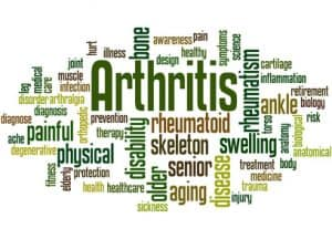 Causes of Arthritis: What Are The Symptoms & Risk Factors