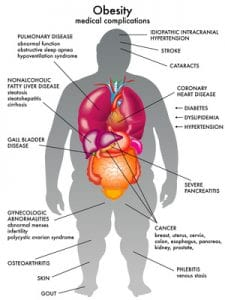 prediabetic risk factors obesity